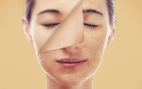 علائم کبد چرب بر پوست