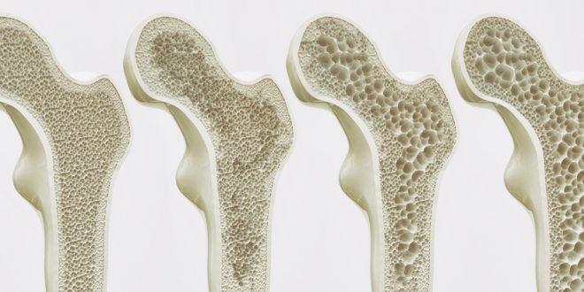 پوکی استخوان2