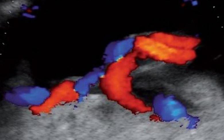 سونوگرافی جنین در هفته نوزدهم بارداری