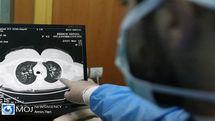 جدیدترین آمار کرونا در کشور تا ظهر ۱۶ شهریور ۹۹/ شناسایی یک هزار و ۹۹۲ بیمار جدید