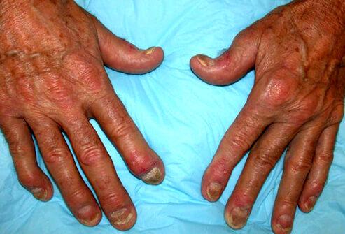 درمانهای طبیعی برای عارضه آرتریت پسوریاتیک