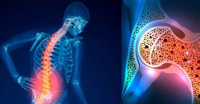 راه های پیشگیری و درمان پوکی استخوان/پوکی استخوان؛ بیماری خاموش در دوران  کهنسالی