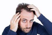 علت چربی مو سر چیست؟/ راه های جلوگیری از چرب شدن مو