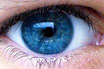 لکه های زرد درون چشم چه عوارضی به دنبال دارد؟