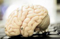 چگونگی رشد تومورهای مغزی کشف شد
