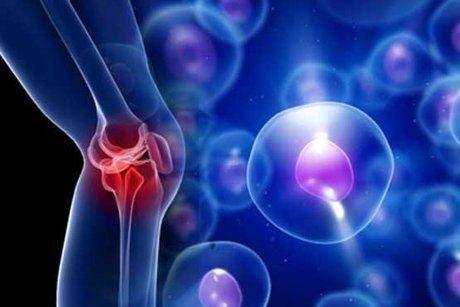 درمان بیماری ورم استخوانی با داربستهای حاوی آنتی بیوتیک