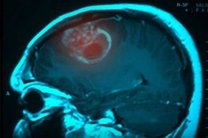 دانشمندان مدعی کشف علت اصلی ابتلا به سرطان مغز شدند