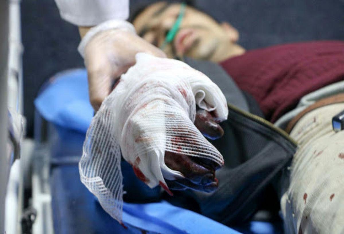 مصدومیت 87 نفر در حوادث مرتبط با چهارشنبه آخر سال در اردبیل