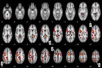 استفاده از الگوریتم یادگیری عمیق برای تشخیص اسکیزوفرنی