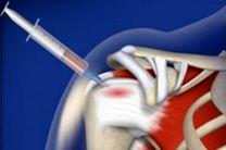 سلولهای بنیادی آسیبهای نخاعی را بازسازی میکنند