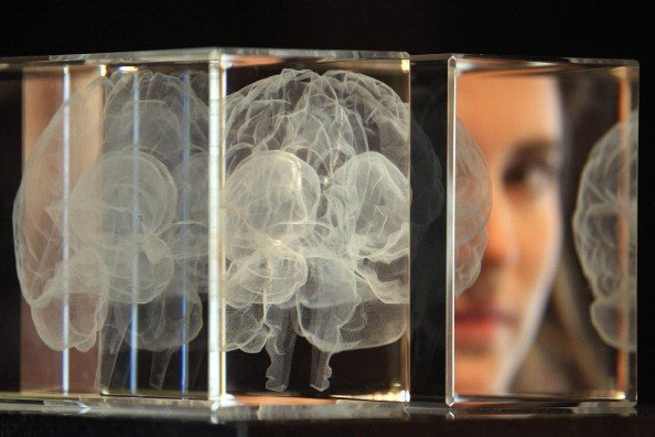 گام محققان کشور برای شناسایی زودهنگام آلزایمر