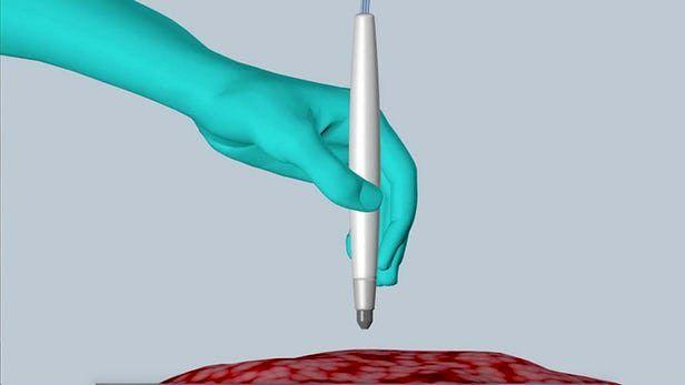 تشخیص بافت سرطانی در چند ثانیه با یک دستگاه قلمی شکل
