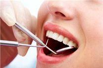 روشهای زیباسازی دندانها/ گرایش مردم به داشتن دندانهای زیبا افزایش یافته است