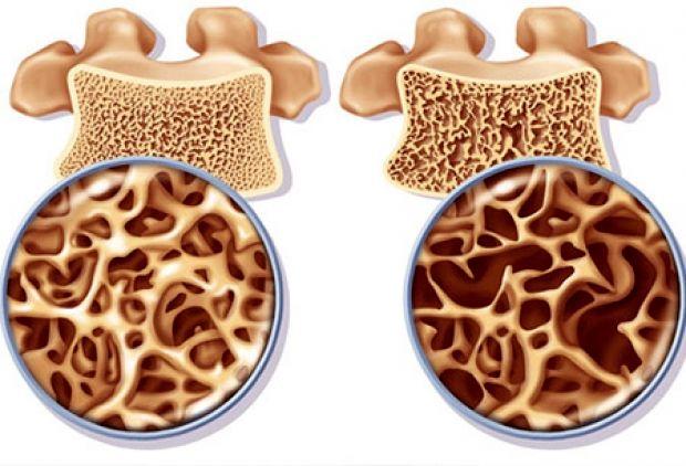 راهکارهای شگفت انگیز برای تشخیص و درمان پوکی استخوان