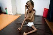 ۶۶ درصد یمنیها هیچ غذایی برای خوردن ندارند