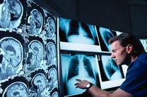 کاهش تعرفه های خدمات رادیولوژی - تصویربرداری غیر کارشناسی، ناعادلانه و غیر شفاف است