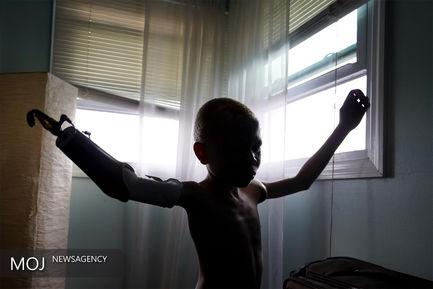 چهار کودک تانزانیایی قربانیان جادو