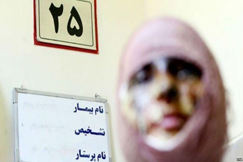 قانون، مجازات اسیدپاشی را تشدید میکند
