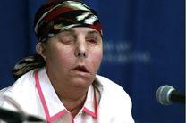 دومین عمل پیوند صورت در جهان برای یک زن آمریکایی انجام شد
