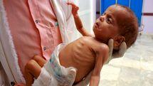 فوت سالانه ۱۰۰ هزار نوزاد در یمن به دلیل محاصره و جنگ