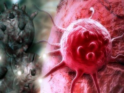 عامل وقوع سرطان سینه کشف شد