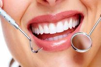 جلوگیری از پوسیدگی دندان با ابداع ماده جدیدی برای پر کردن دندان