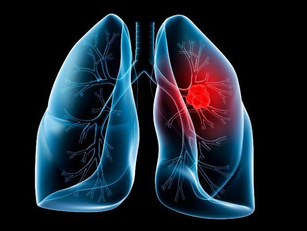 علایم سرطان ریه را بشناسید