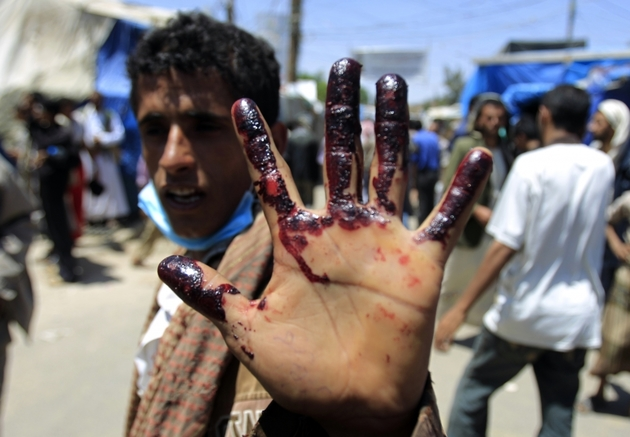 بزرگترین بحران انسانی جهان در یمن است