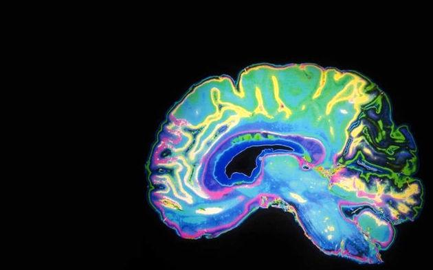 توسعه فناوری پوشیدنی برای نظارت بر عملکرد مناطق مختلف مغز