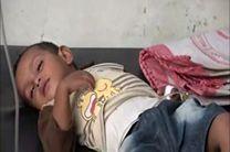 """تشدید نگرانی ها از شیوع """"تب دنگی"""" در یمن"""