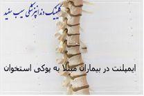 ایمپلنت دندان و پوکی استخوان