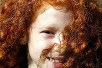 کسانی که موی قرمز دارند بیشتر در معرض سرطان هستند